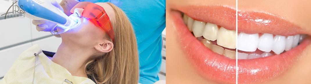 Отбеливание зубов BELLE from Dr.Care