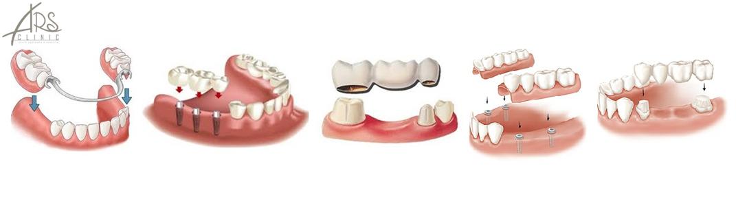 Протезирование зубов в Москве цены